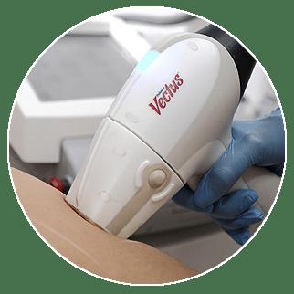 usuwanie przebarwień laserem Białystok